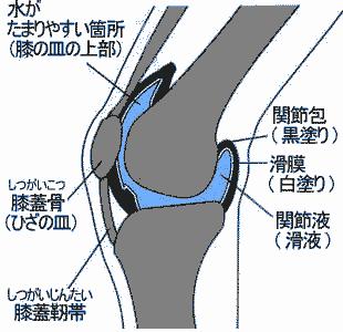 図解:ひざに水かたまる