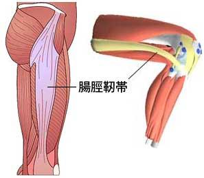解剖図:腸脛靭帯の位置