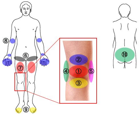 『膝の痛み』- 膝の異常・痛みの特徴・痛む部位など具体的な ...